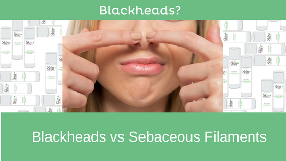 The Important Difference Between Blackheads & Sebaceous Filaments