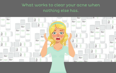 Read all about how to clear your acne when you think you've tried everything.