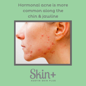 Picture of hormone acne