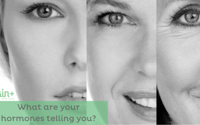 Is Your Skin Hormonal?