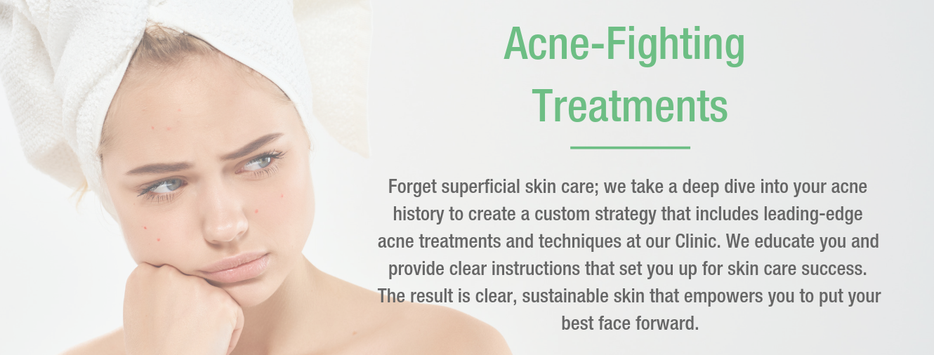 Acne Fighting Treatments