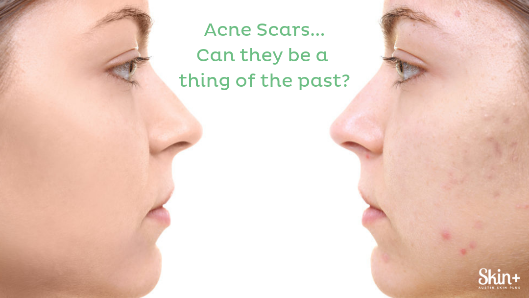 Acne Scars:  Can they be a thing of the past?