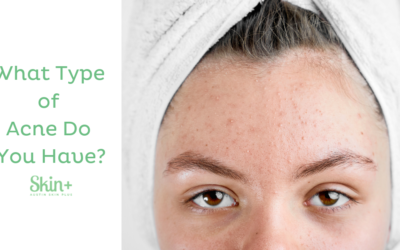 Acne: Not a One-Size-Fits All