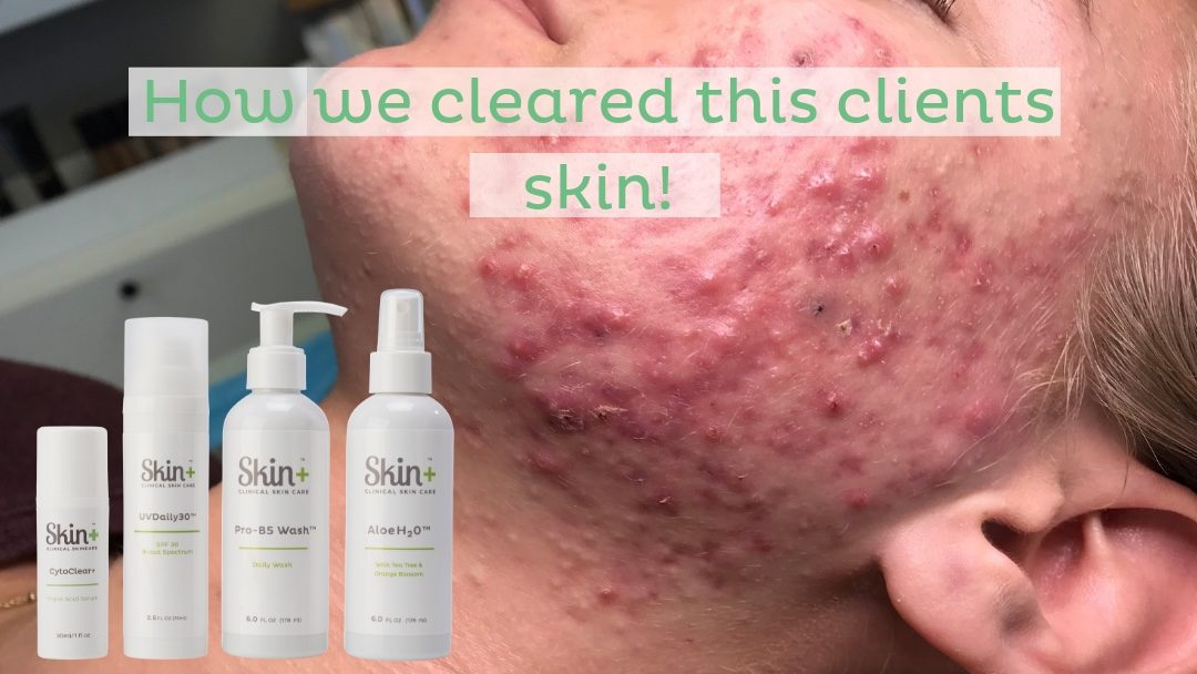 How We Cleared This Client's Skin!