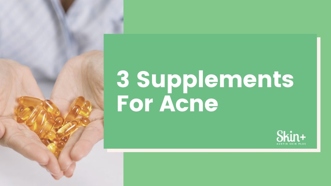 Top 3 Supplements for Acne