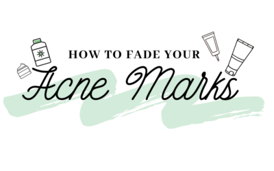 How To Fade Acne Marks